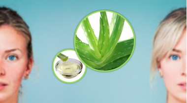 Aloe Vera to remove redness on the skin